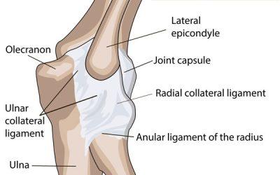 Elbow Ligamentous Sprain