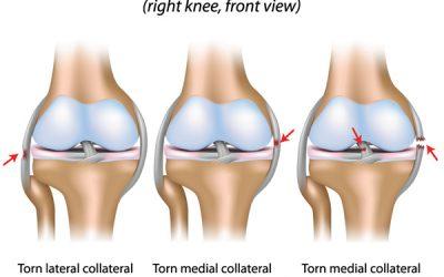 Knee Ligamentous Sprain