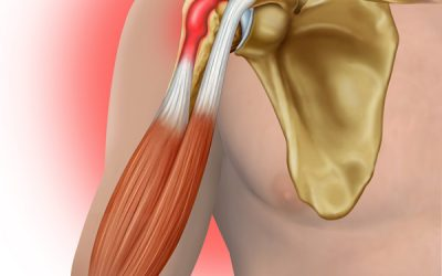 Shoulder Tendinitis/Bursitis