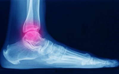 Ankle and foot fractures