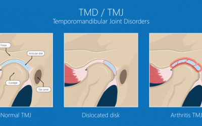TMJ disc Displacement and Entrapment syndromes