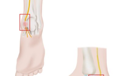 Posterior Tarsal Tunnel Syndrome