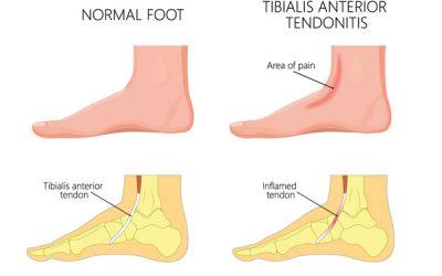 Tibialis anterior tendinitis